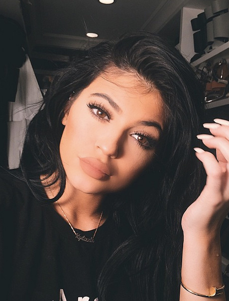 Kylie Jenner's Lips Gone Horribly Wrong